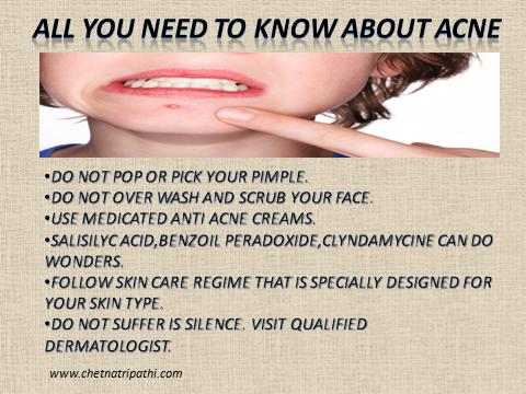 alll-about-acne